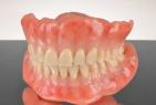 有床義歯(入れ歯)